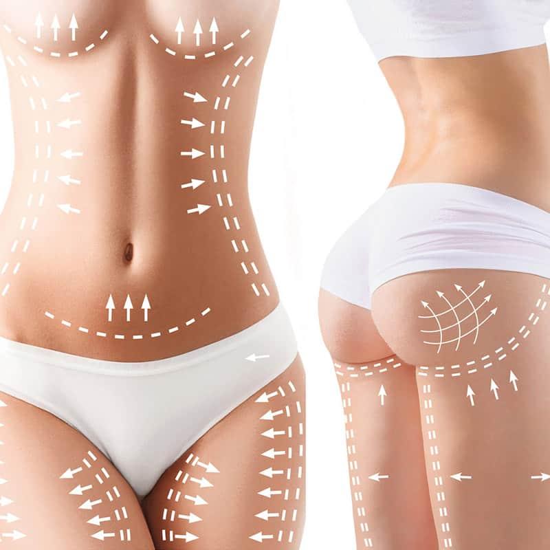 Modelowanie piersi/pośladków kwasem hialuronowym
